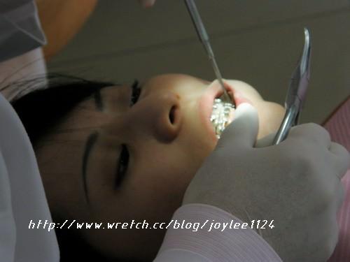 [牙套日記]2008.4.12回診之痛死我也